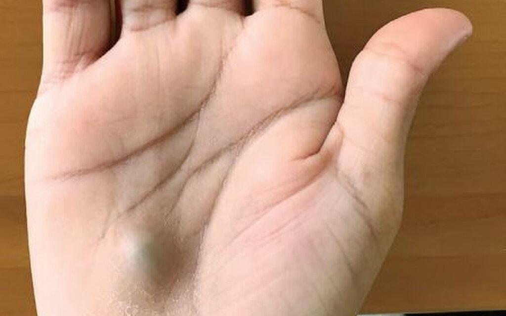 A este hombre le salió un bulto azul en la mano tras ir al dentista. ¿Por qué?