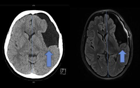 Una mujer descubre que tenía un extraño quiste en el cerebro, tras acudir a la consulta del quiropráctico