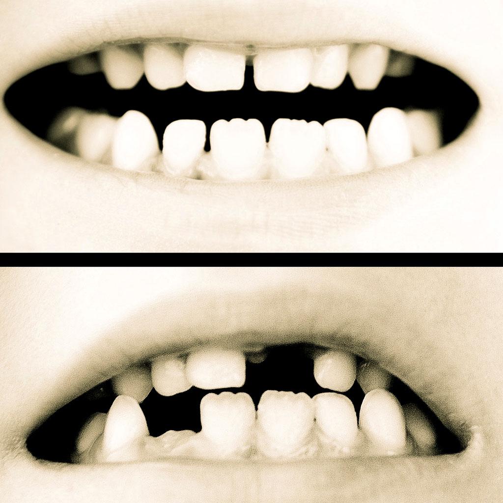 Así serán nuestros dientes en el futuro
