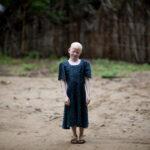 Así viven los albinos en África
