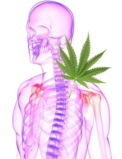 Cannabis contra la esclerosis