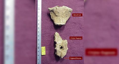 2000 años atrás este hombre murió por una herida perfectamente circular en el pecho