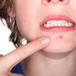 ¿Cuáles son los peligros de reventarse una espinilla?