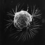 Descubren el sistema que permite a las células tumorales moverse