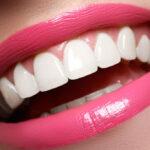 Descubren una técnica más segura para blanquear los dientes