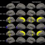 Diferencias en el cerebro de quienes sufren depresión y ansiedad
