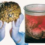 ¿El amor reside en el cerebro?
