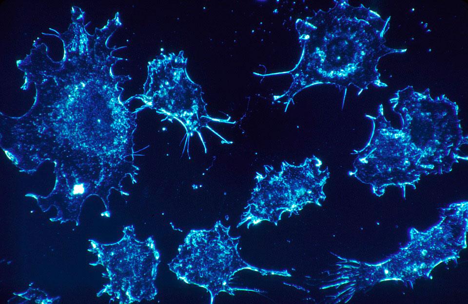 El primer mapa de las debilidades del cáncer
