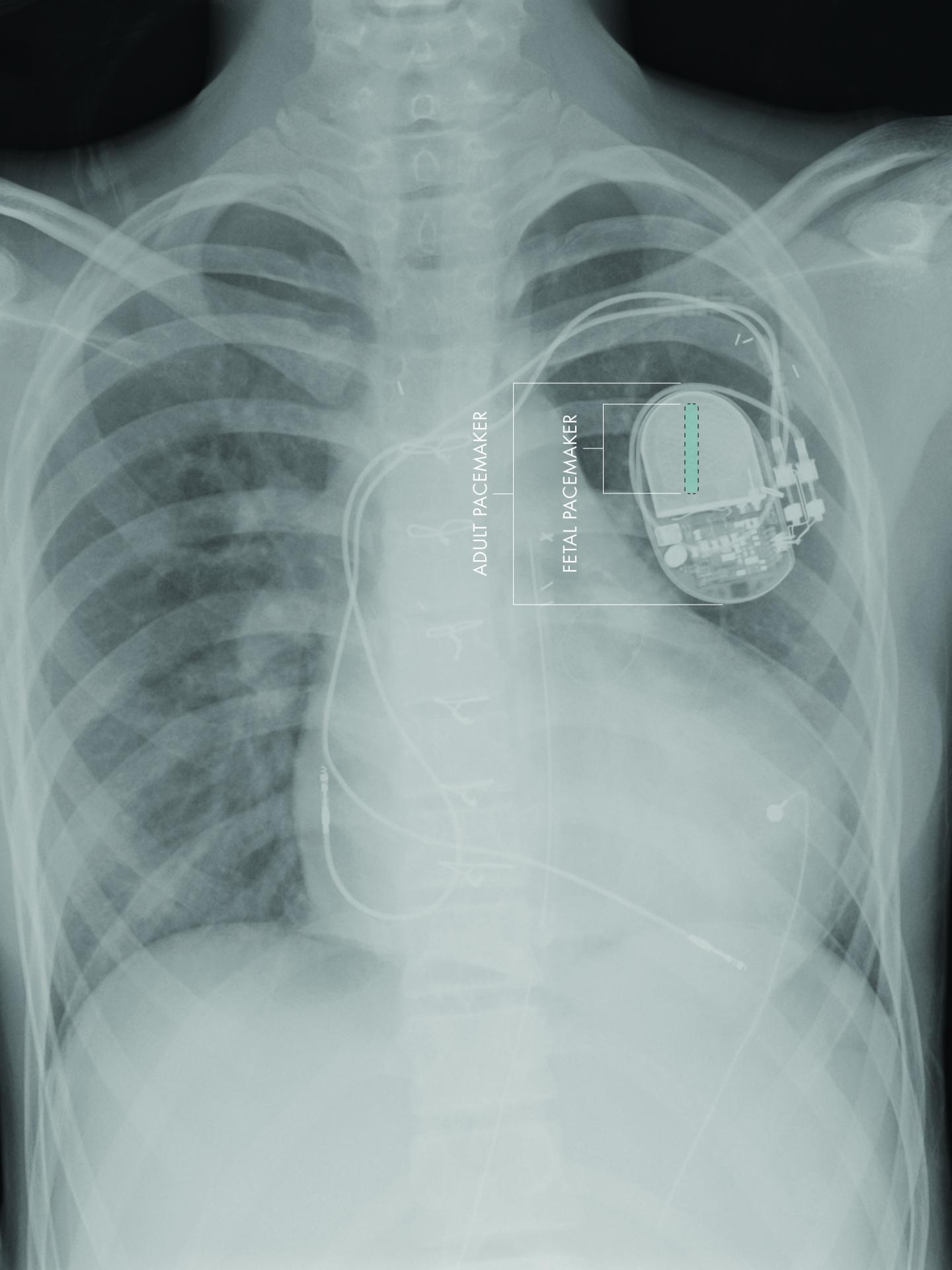 El primer micromarcapasos implantable