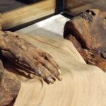 Embalsaman viva por error a una mujer en un hospital ruso
