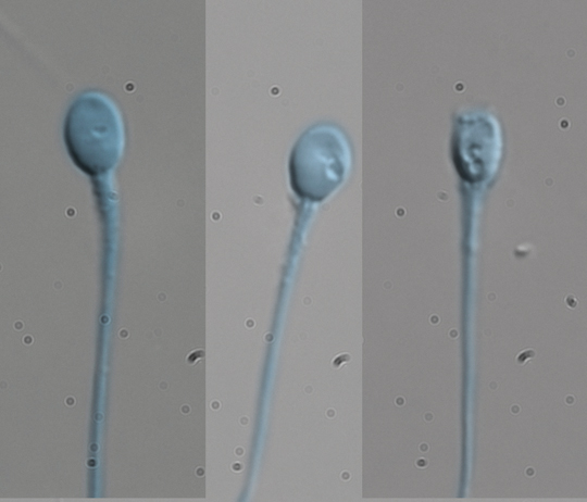 Los mejores espermatozoides