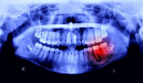 ¿Te sangran las encías? Podrías tener riesgo de Alzheimer