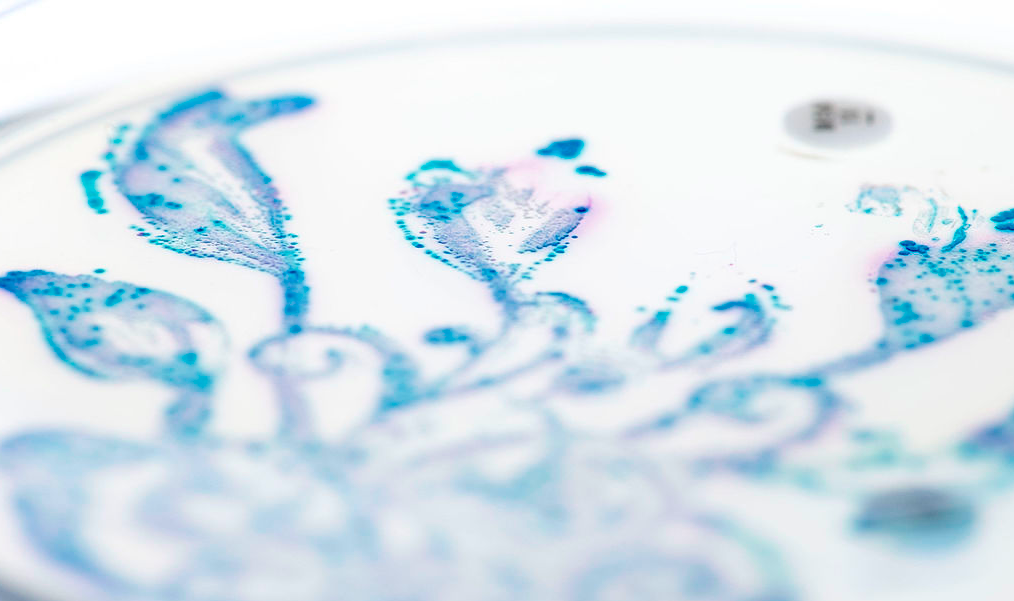 La flora intestinal clave para fabricar sangre universal