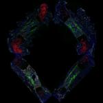 La placenta compensa el crecimiento desparejo de tejidos