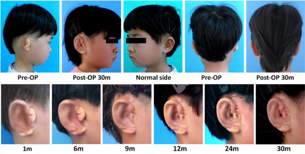 Logran que a unos niños les crezcan orejas nuevas cultivadas con sus propias células