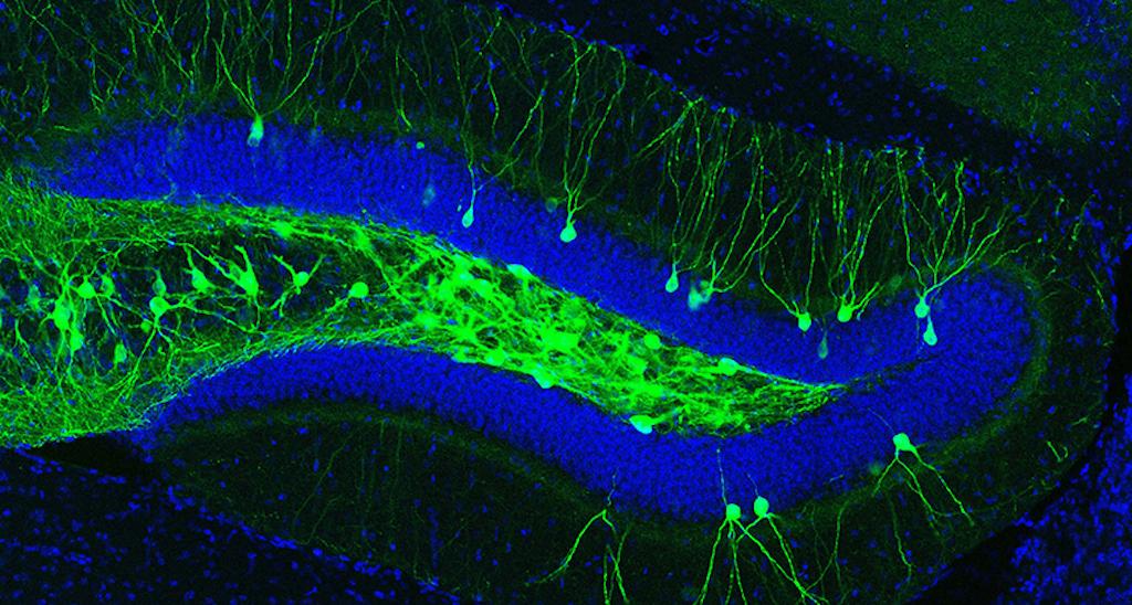 Logran recuperar recuerdos de ratones con síntomas de Alzheimer