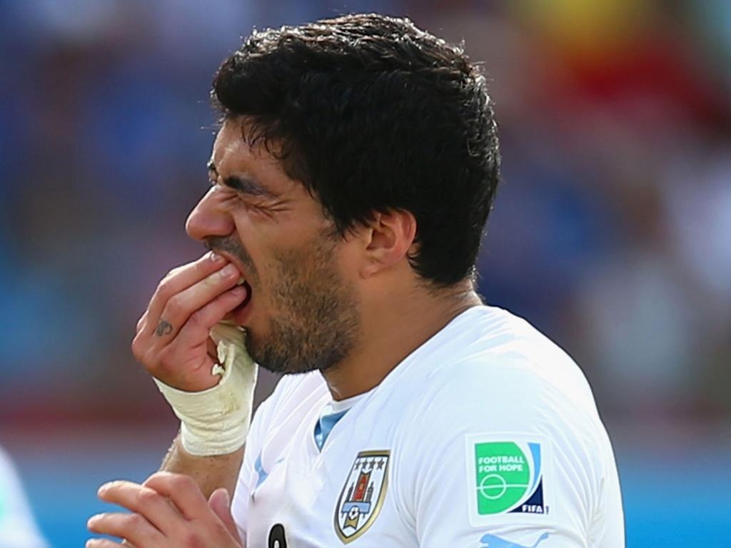 Los deportistas tienen una mala salud dental