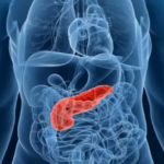 Nanomedicina contra el cáncer de páncreas