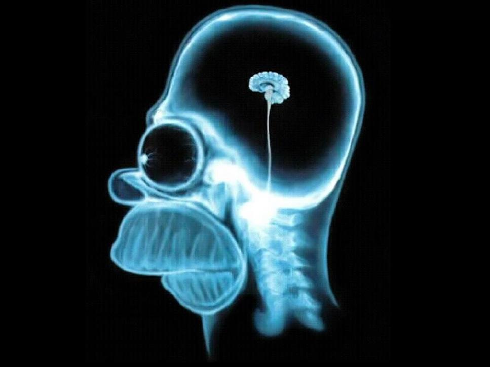 El cerebro humano está disminuyendo de tamaño