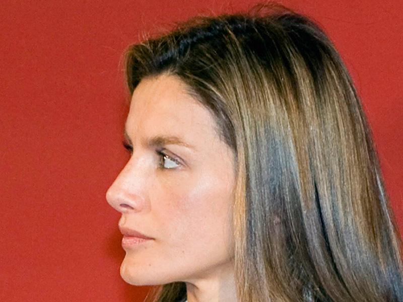 Fases de la operación de nariz