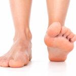 Os mostramos uno de los primeros síntomas que produce en el pie la bacteria come carne