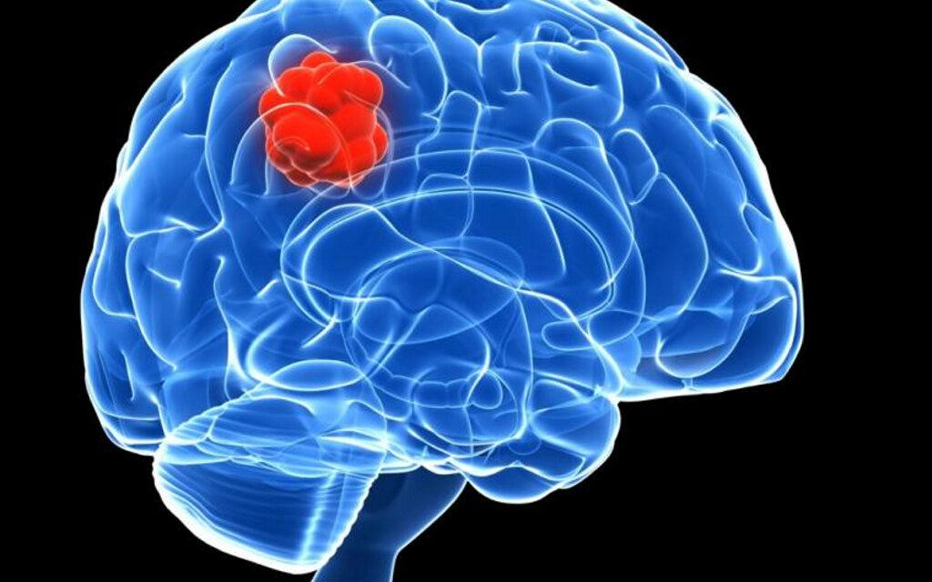 ¿Por qué el tumor cerebral de esta mujer casi ha desaparecido sin recibir tratamiento?