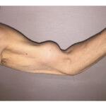 ¿Qué le pasa a este hombre en el bíceps? Tiene una deformidad llamada brazo de Popeye