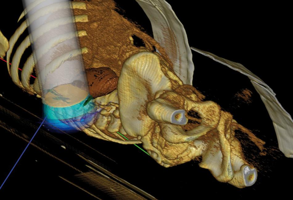 Radioterapia al operar