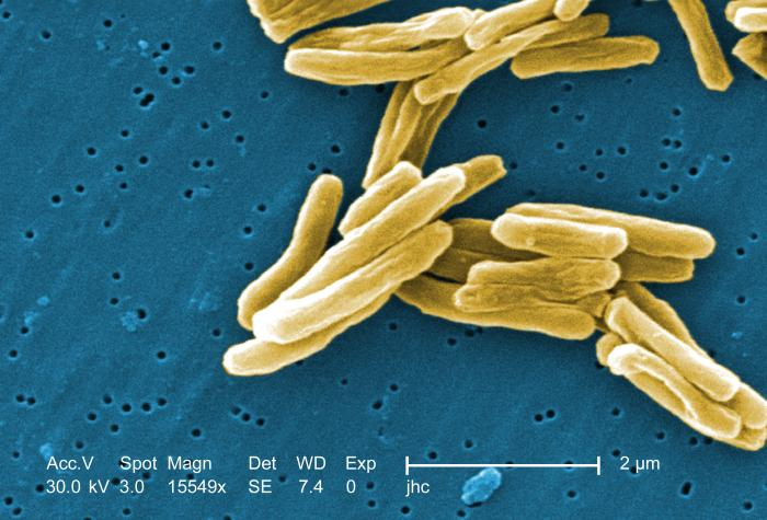 Tuberculosis al momento