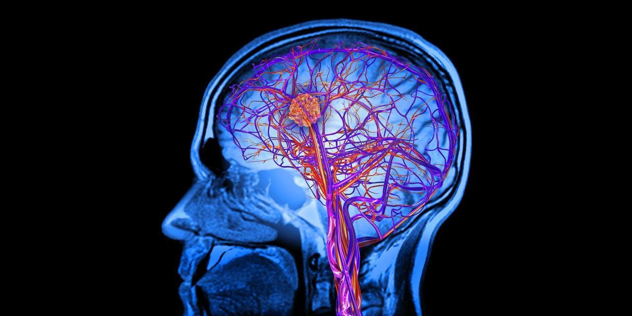 Un virus puede ayudar a luchar contra los tumores cerebrales