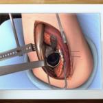 Una aplicación gratuita para convertirse en cirujano