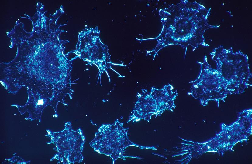 Una nueva forma de hacer biopsias líquidas: con sonido