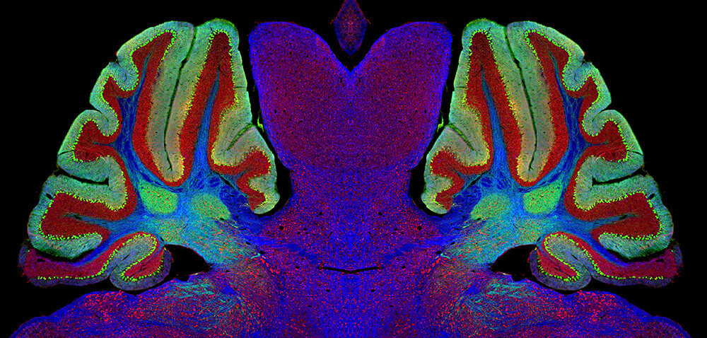 Un análisis de sangre para enfermedades neurodegenerativas