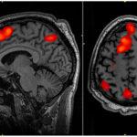 Un nuevo tratamiento de estimulación magnética alivia la depresión en el 90% de los pacientes