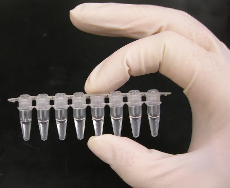 Desarrollan un nuevo test para coronavirus: resultados fiables en un minuto y a un precio mucho menor