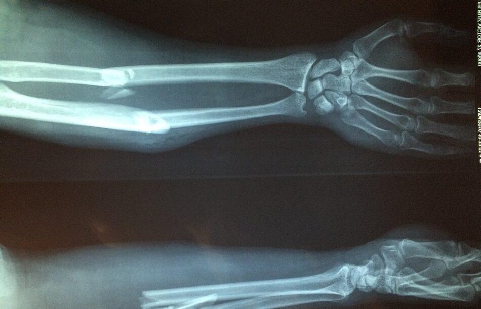 Este vendaje con células madre hace que se suelden antes los huesos rotos