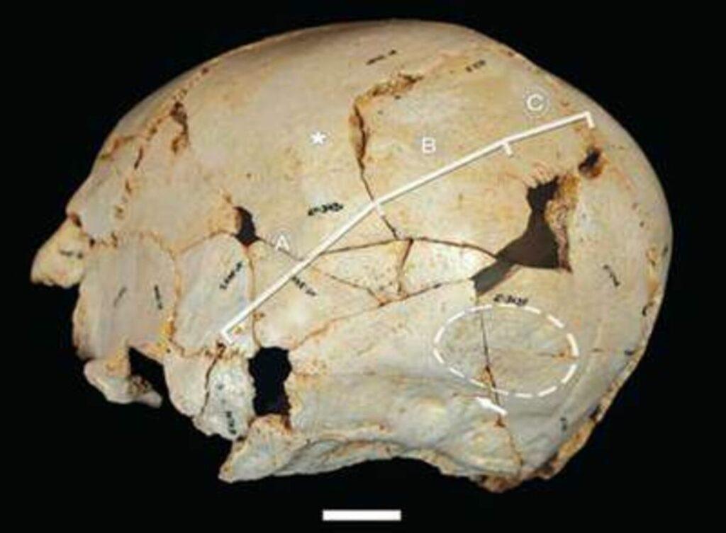 Cráneo de Benjamina