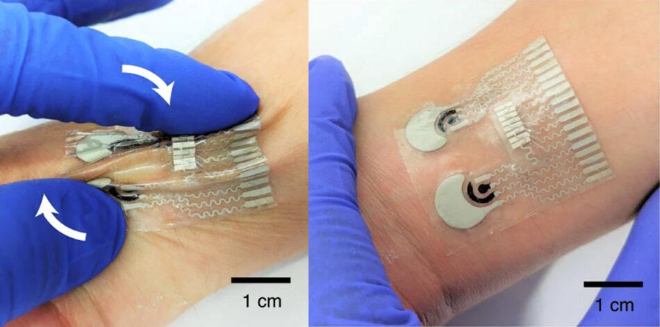 Este parche mide la glucosa y el alcohol en sangre a través de la piel