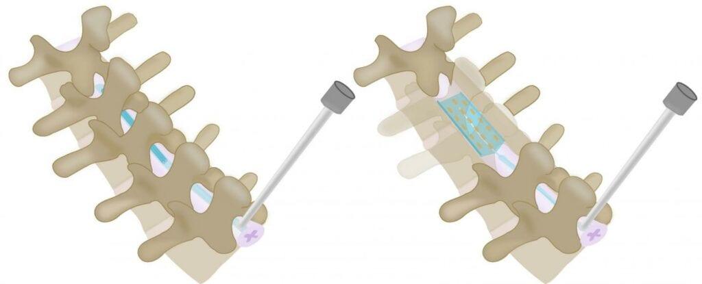 implante en la columna cervical